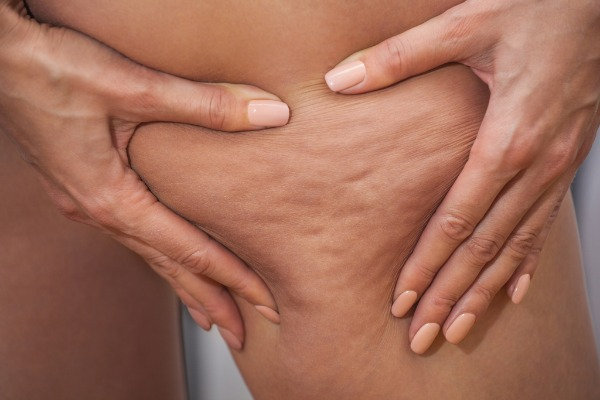 Cellulite, Fat Deposits