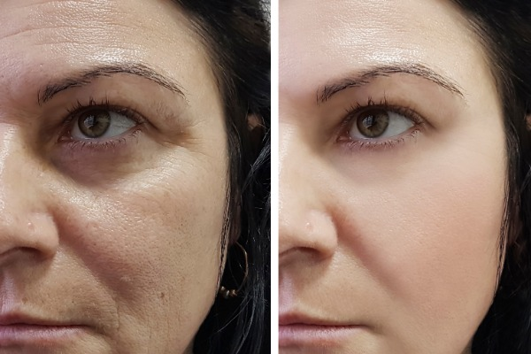 Move over moisturiser, Profhilo is 2019's new anit-wrinkle